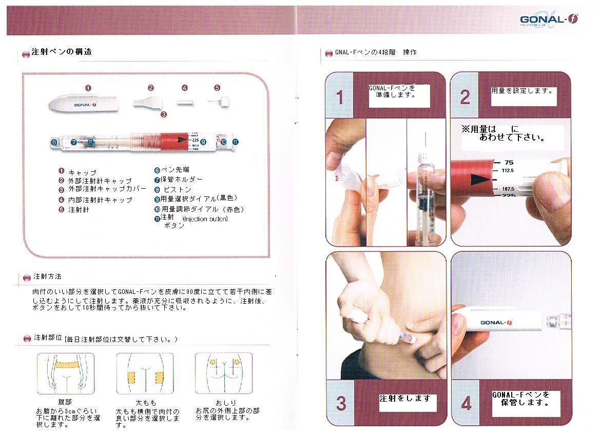 排卵 誘発 剤 注射